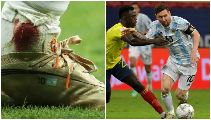Copa America 2021: তাঁর পা থেকে রক্ত ঝরছিল! না থেমেই খেলে গেলেন ভক্তের ভগবান Messi