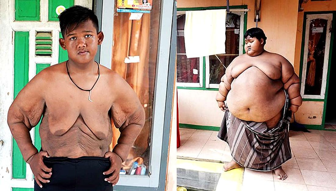 World's fattest child