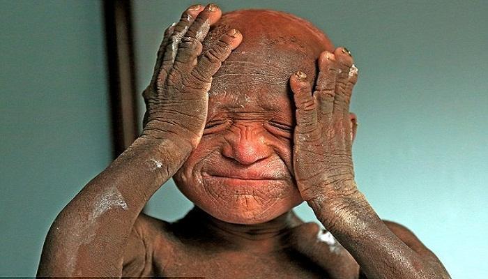 বিরল চর্মরোগে 'পাথর'-এ পরিণত হচ্ছে ১১ বছরের শিশু (দেখুন ভিডিওতে)